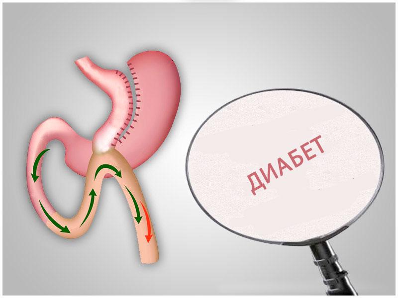 Режим обогрева Факторы риска при сахарном диабете